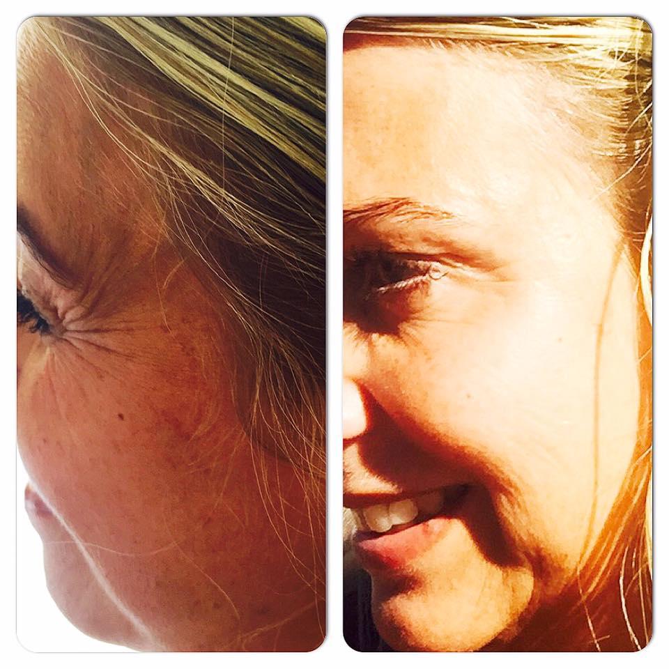 botox före och efter